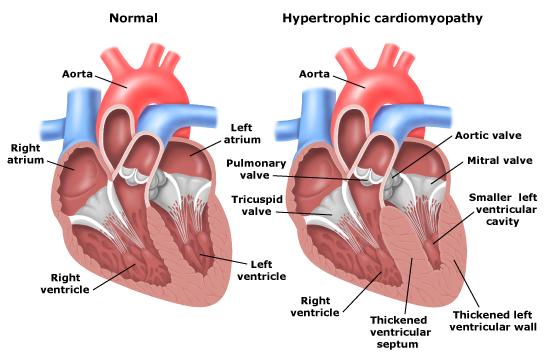 cardiomyopathy murmur